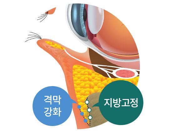 수술 후 변화된 눈매 이미지